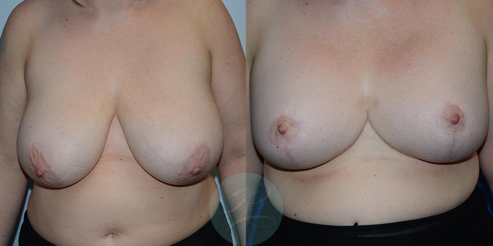 R-Breast-Reduction-2a.jpg