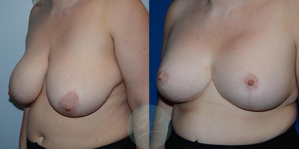 R-Breast-Reduction-2b.jpg
