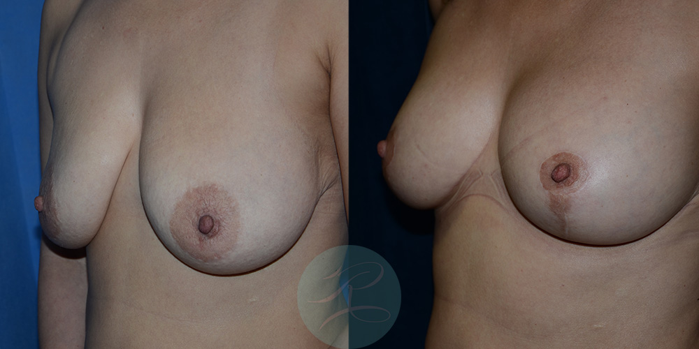 R-Breast-Uplift-1a.jpg