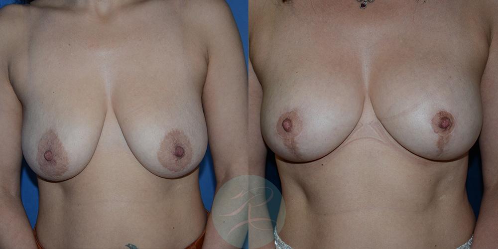 R-Breast-Uplift-1c.jpg