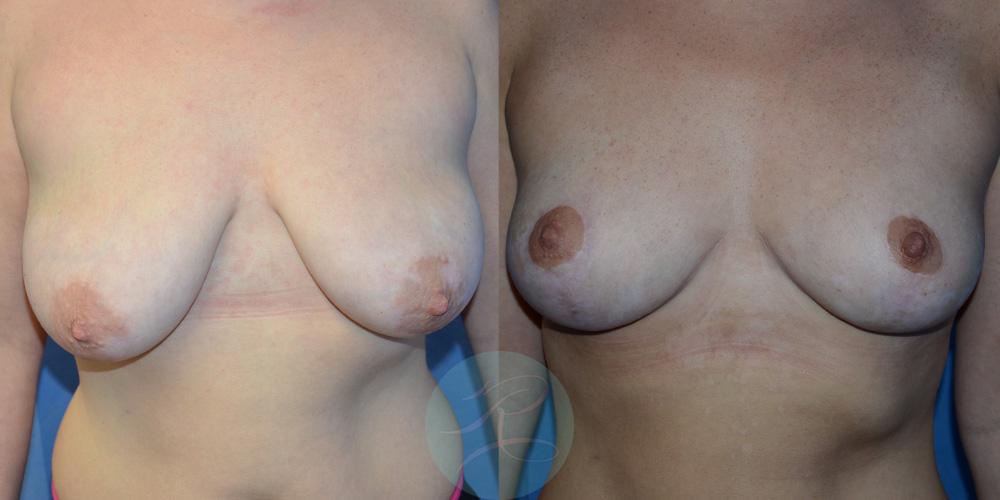 R-Breast-Uplift-2c.jpg
