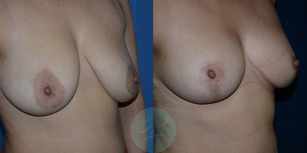 Before and post 6 weeks R Breast Uplift cosmetic surgery procedure carried out at Mr Riaz's clinic at the Spire hospital East Yorkshire.