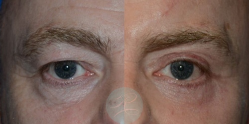 Before and 3 weeks post a upper and lower R Browpexy and Blepharoplasty creating a winder, open and more youthful eye.