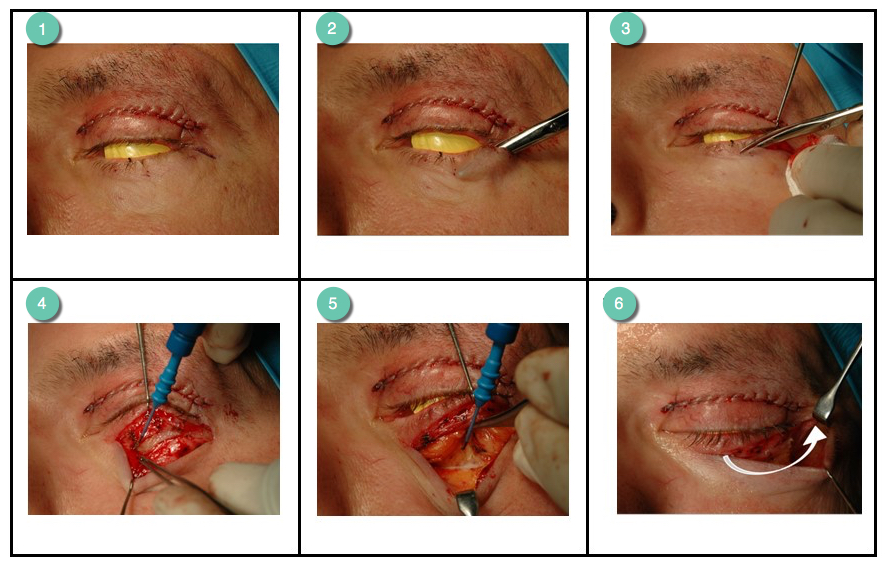 Incision and dissection steps of an upper and lower blepharoplasty procedure by Mr Riaz Cosmetic Surgery Hull & East Yorkshire