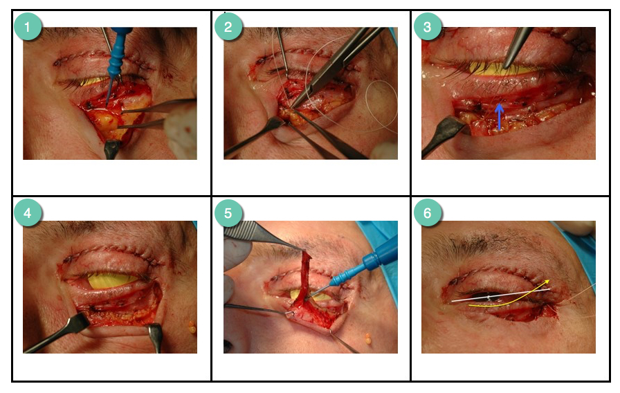 Volume augmentation steps of an upper and lower blepharoplasty procedure by Mr Riaz Cosmetic Surgery Hull & East Yorkshire