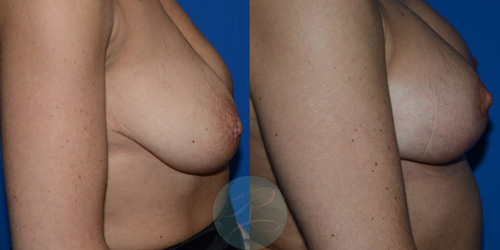R-Breast-Uplift-3a.jpg