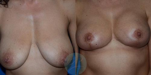 R-Breast-Uplift-3b.jpg