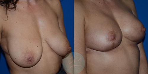 R-Breast-Uplift-3c.jpg