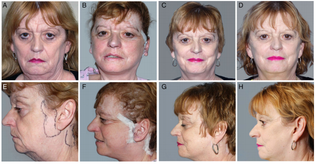 Figure 1. (A, E) Preoperative, (B, F) 1 day postoperative, (C, G) 1 year postoperative, and (D, H) 22 month postoperative photographs of this 55-year-old woman.