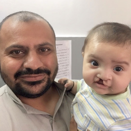 One of our delicious little patients with her dad just waiting got go in for surgery to correct the lip.