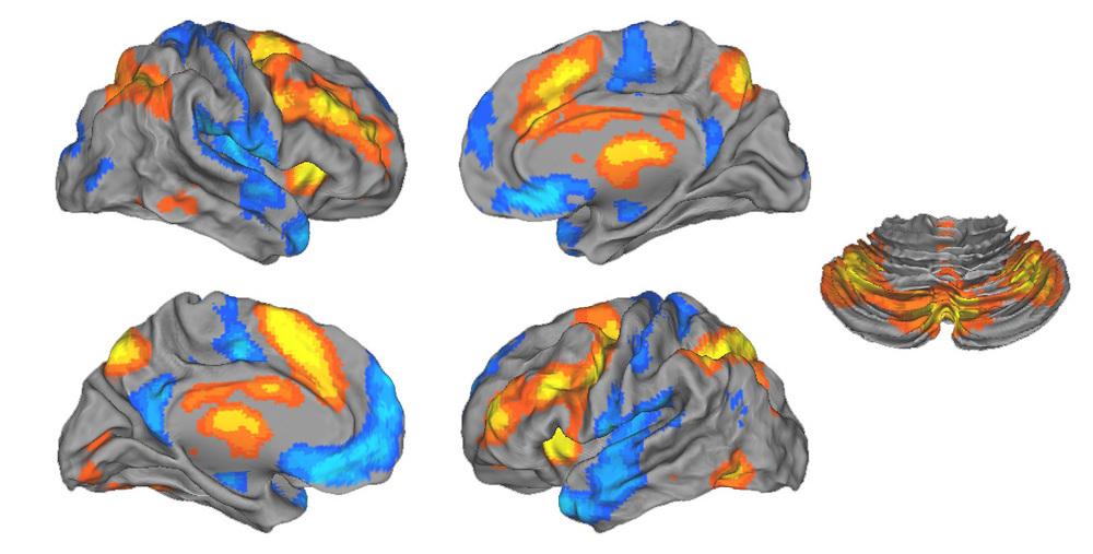 Satterthwaite et al., J Neurosci 2013