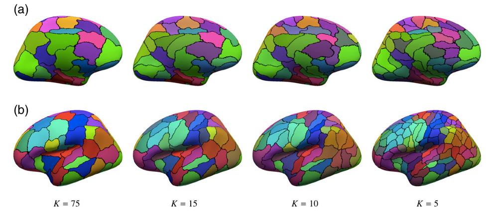 Honnorat et al., Neuroimage 2015