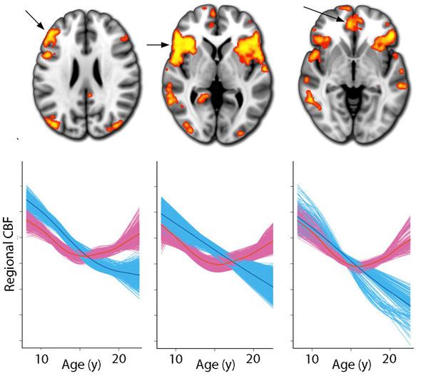 Satterthwaite et al., PNAS 2014