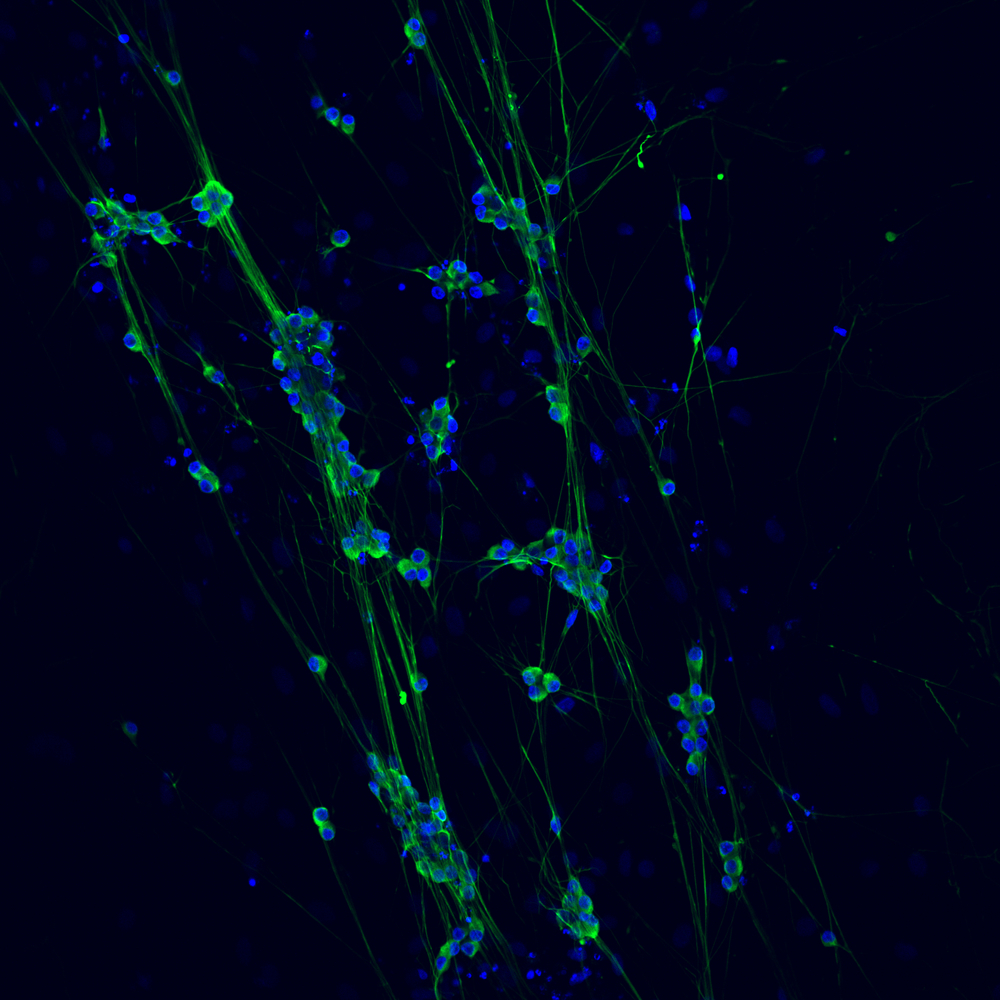 Dorsal Root Ganglion Cells Aligned on a Collagen Scaffold
