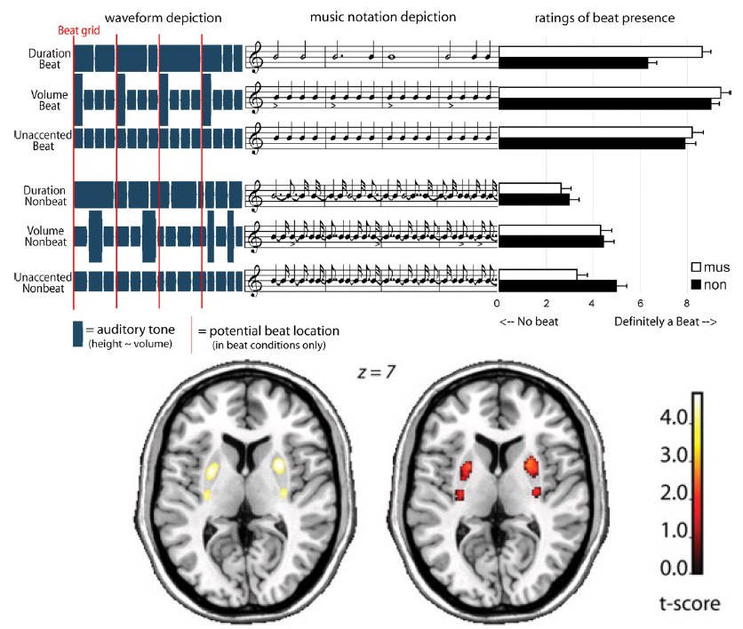 A series of images from an experiment exploring neurobiology of rhythm and beat perception. [Top] Schematic depictions of the auditory stimuli used in experiments [Left to Right] Auditory Waveform | Standard Musical Notation | Means rate of observed beats. [Bottom] Statistical parametric mapping (SPM) analyses. The beat versus non-beat contrasts overlaid on a template brain The experiment was conducted on two groups: Musicians and Non-Musicians subjects. Both experiments show significant bilateral activity in the Putamen (part of the Basal Ganglia) for this contrast. The main function of the putamen is to regulate movements and influence speech learn-ability. Image Reference: (GRAHN, Jessica A and Rowe, James B, 2009)