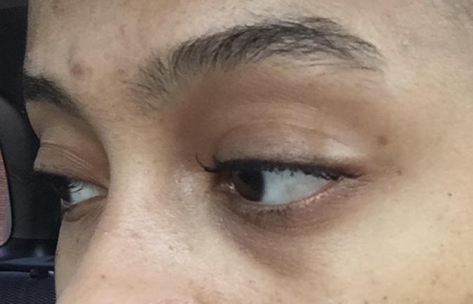 My intern year, before using eye creams, no make up.
