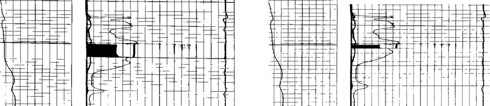 Side by side comparison, stretched logs (left side) during scanning is straightened and normalized (right side) based on the depth axis and grids.