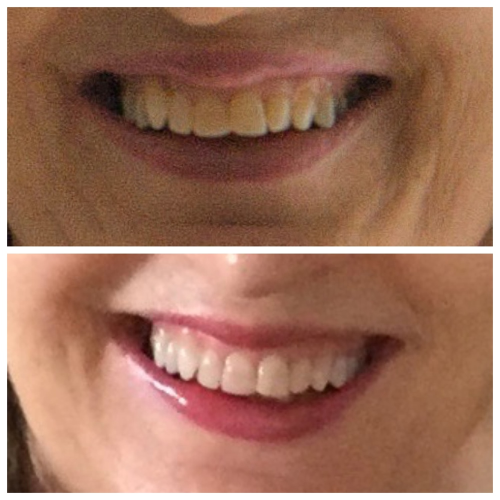 teeth-b4-after.jpg