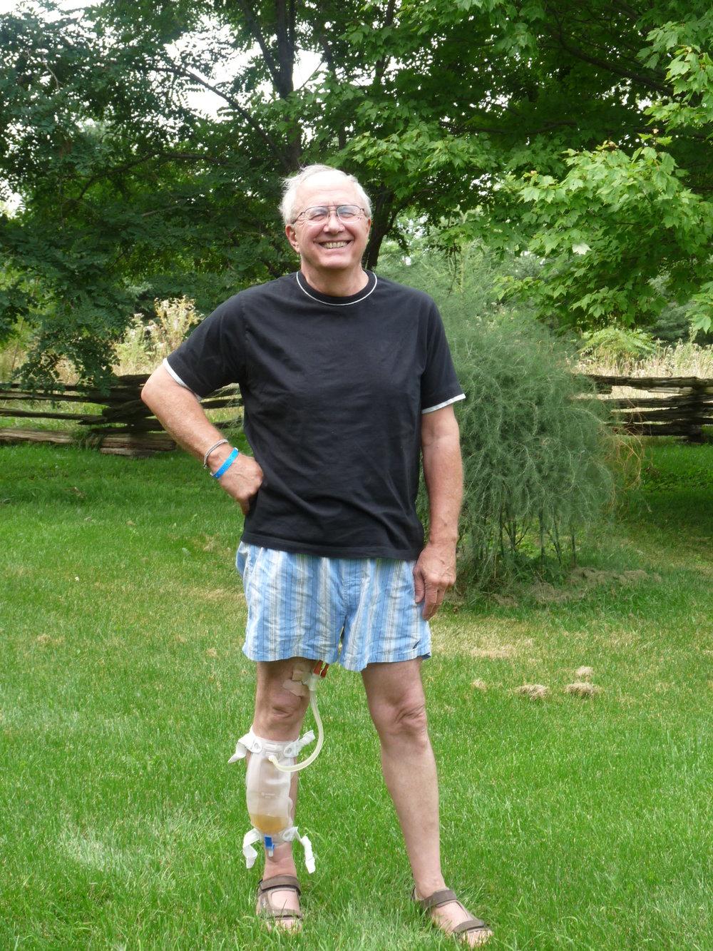 Prostate Operation September 2009 (11).JPG