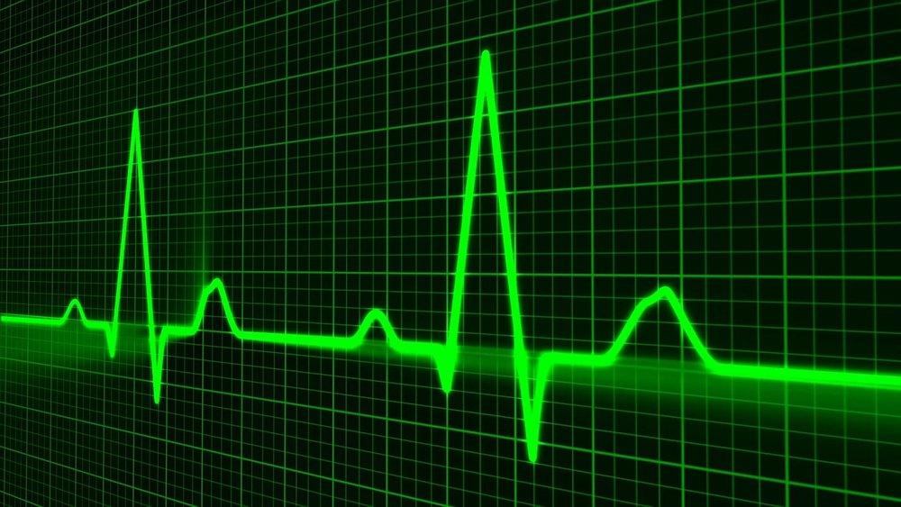 Pulse trace. Image courtesy Pixabay.