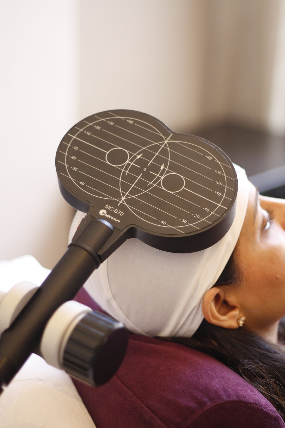TMS Therapy does not involve surgery, anesthesia or sedation and it does not have the side effects associated with traditional antidepressants -