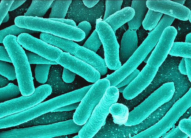 Bowel bacteria taught on UK detox retreats