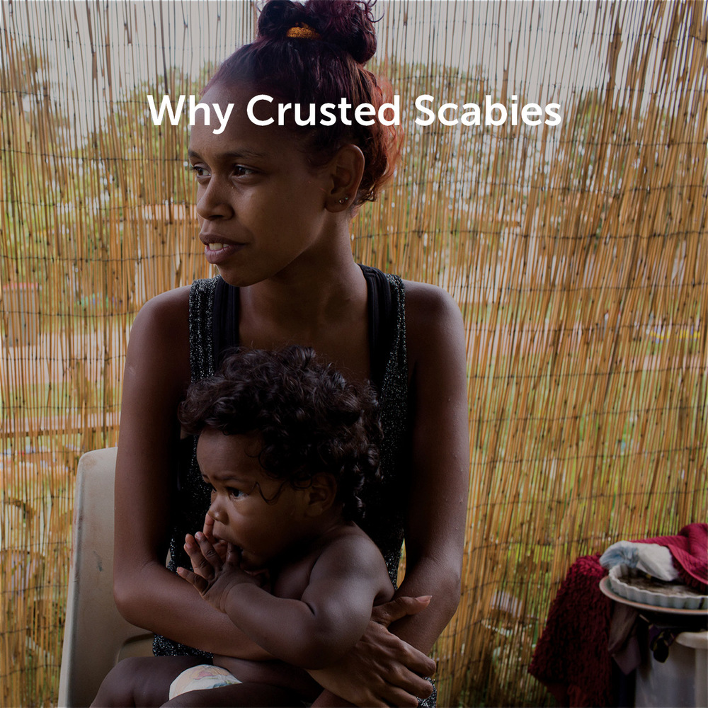 Why Crusted Scabies
