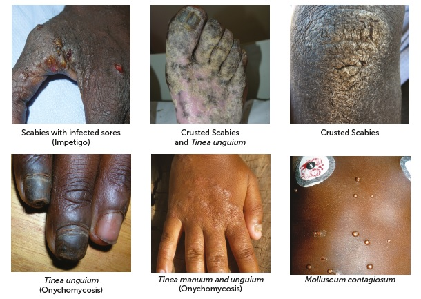 Scabies, Crusted Scabies and Other Common Skin Conditions in Central and Northern Australia