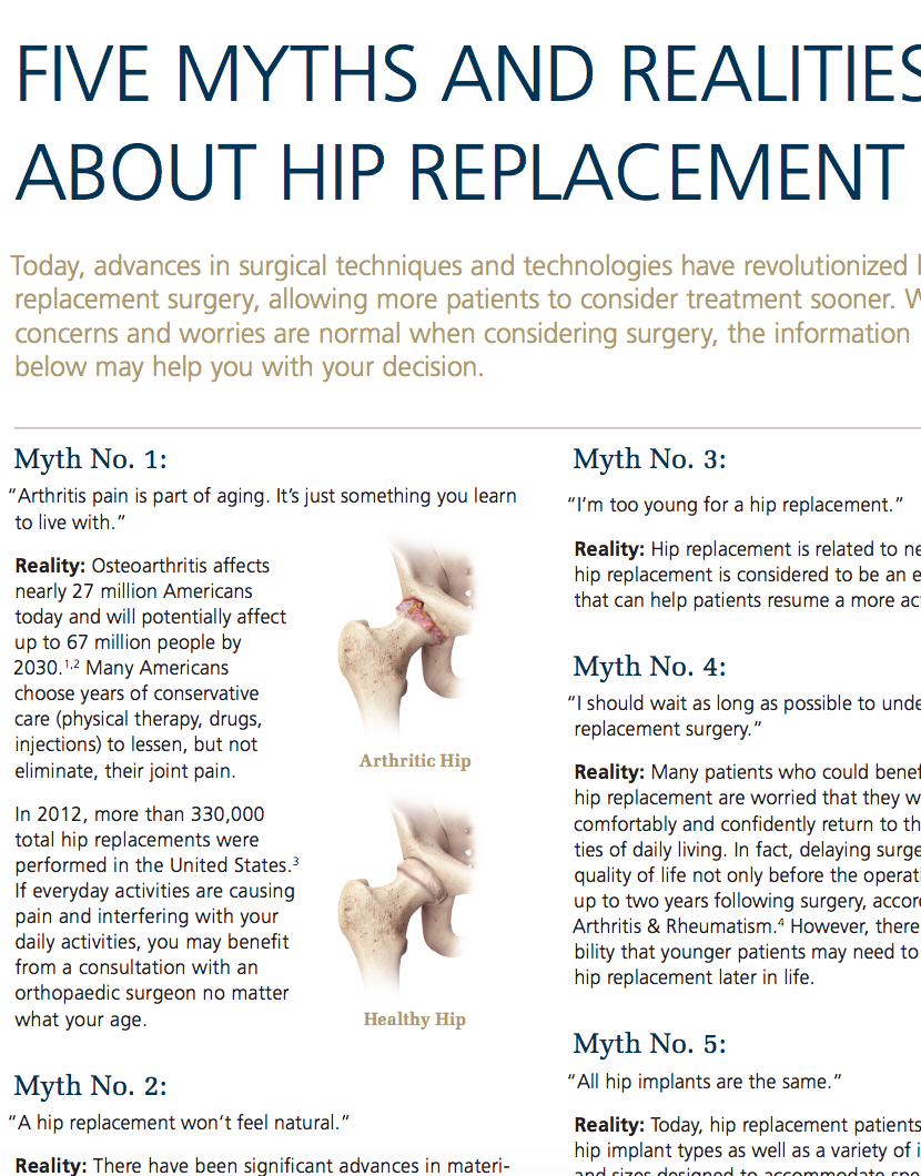 5 Myths & Realities About Hip Replacement Cat. No. DSUS/JRC/0514/0166