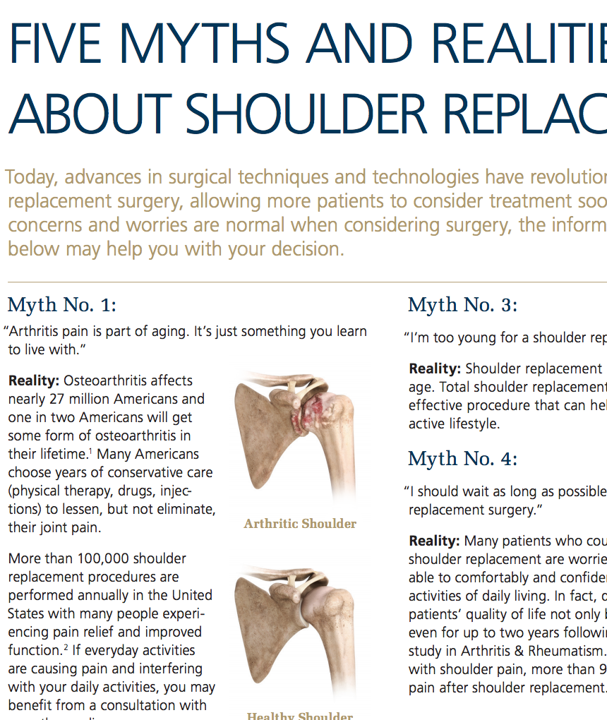 5 Myths and Realities About Shoulder Replacement Cat No: DSUS/JRC/0414/0040