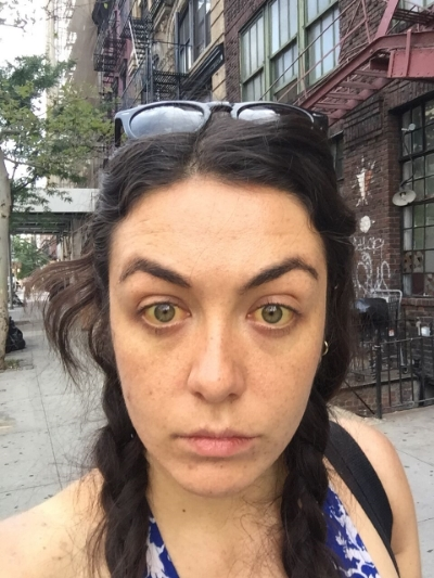 The day before I went into hospital. Gallivanting around the East VIllage as if I wasn't in Acute Liver Failure. I truly had no idea what was about to hit me, despite those yellow eyes.