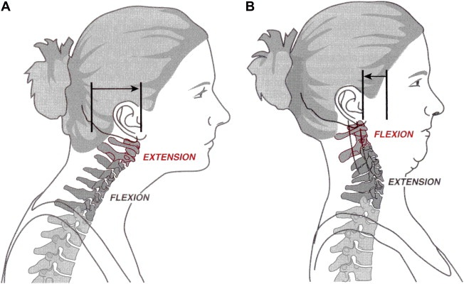 This illustration depicts how a jutting of the chin can create cervical (vertebrae) extension. This stresses both deep and superficial (muscular) structures, resulting in neck and/or shoulder pain and even severe headaches.