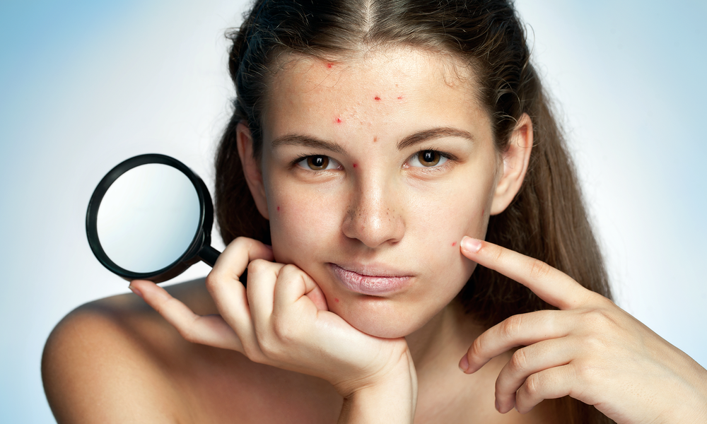 ACNE CLINIC<a href=acne-clinic-mobile>→</a>