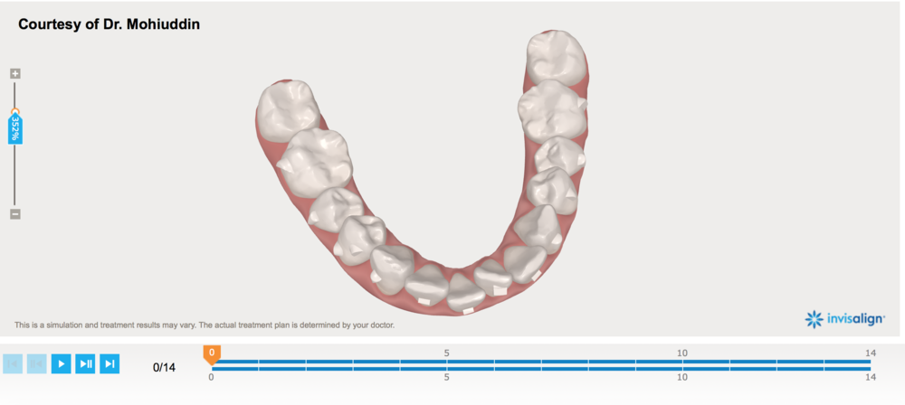 3D Scan before Invisalign and attachments