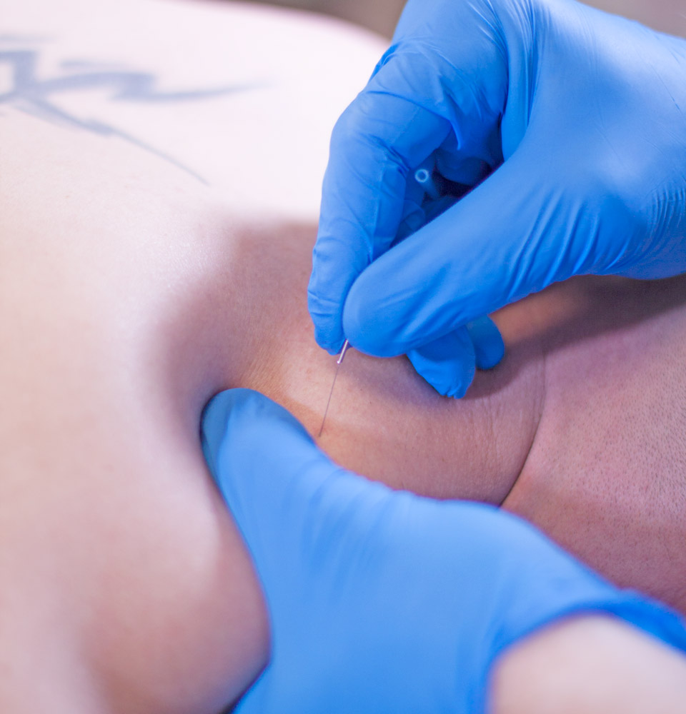 The doctors at Active Spine & Sport Therapy utilize trigger point dry needling to release painful knots in tissues.