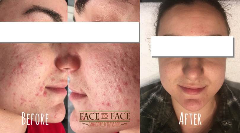 The process to remove her scarring and control her acne took almost a year, using a combination of BioActive Peels, IonActive Treatments, and Medibac Treatments.