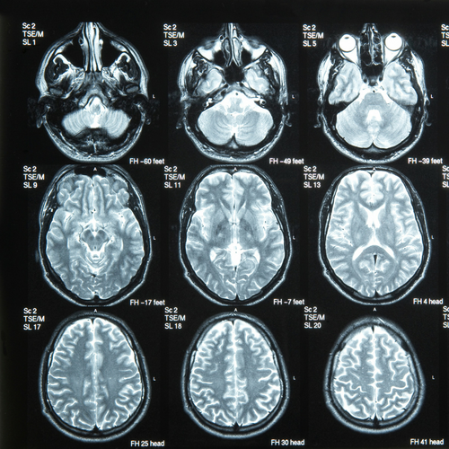 BrainScan_news.png