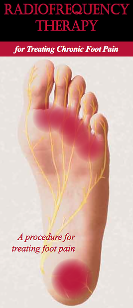 RFNA to treat chronic pain conditions in the feet. radiofrequency for heel pain