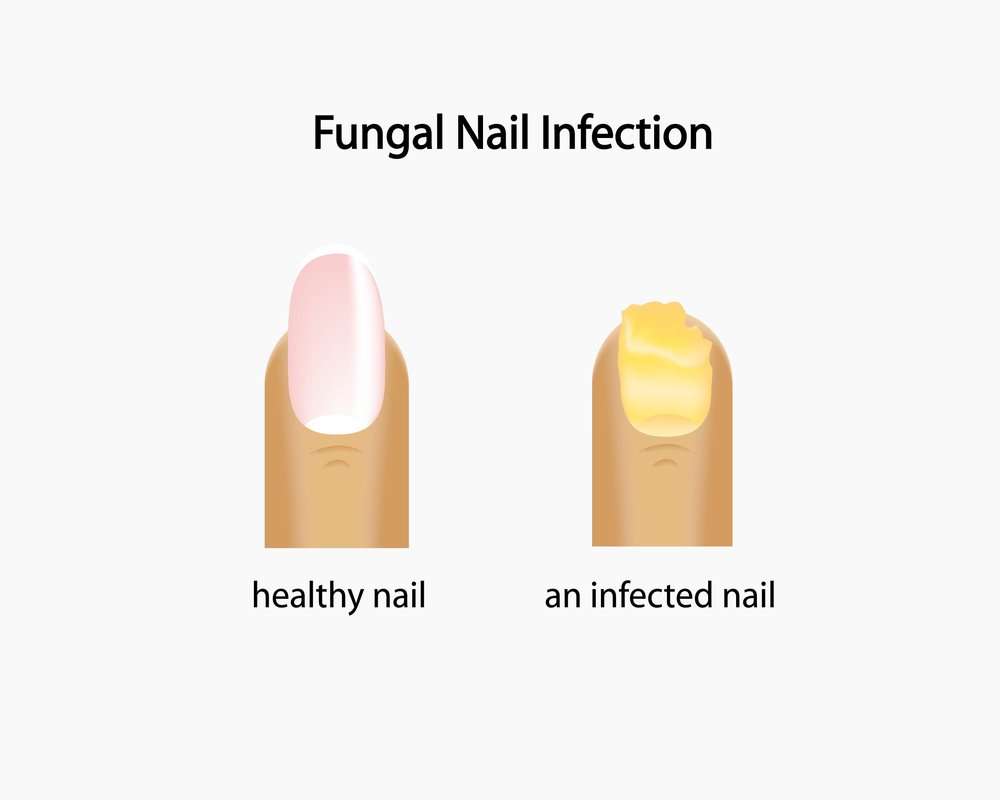 fungal toenail treatment seal beach los alamitos