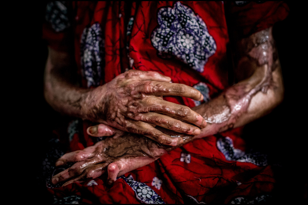 Acid attack victim. Image: Zoriah - Flickr/Creative Commons