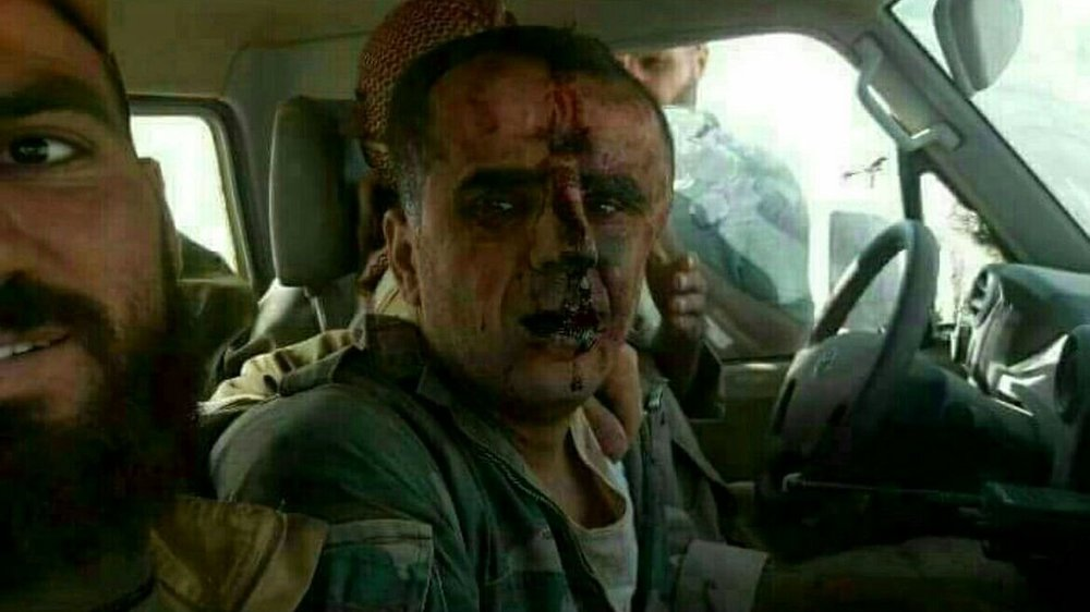 The captured Syrian pilot heavily injured in the aftermath of the incident.
