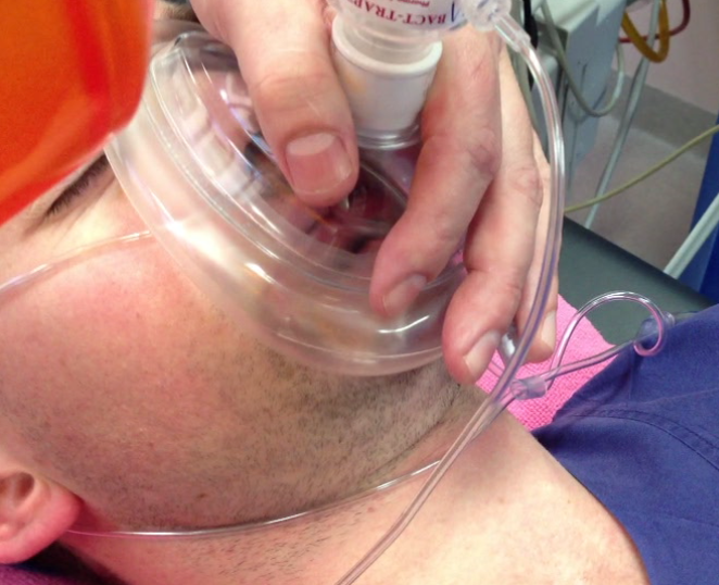 Application of nasal cannulae at 15L/min to allow for apnoeic oxygenation during attempts at laryngoscopy using the NODESAT technique.