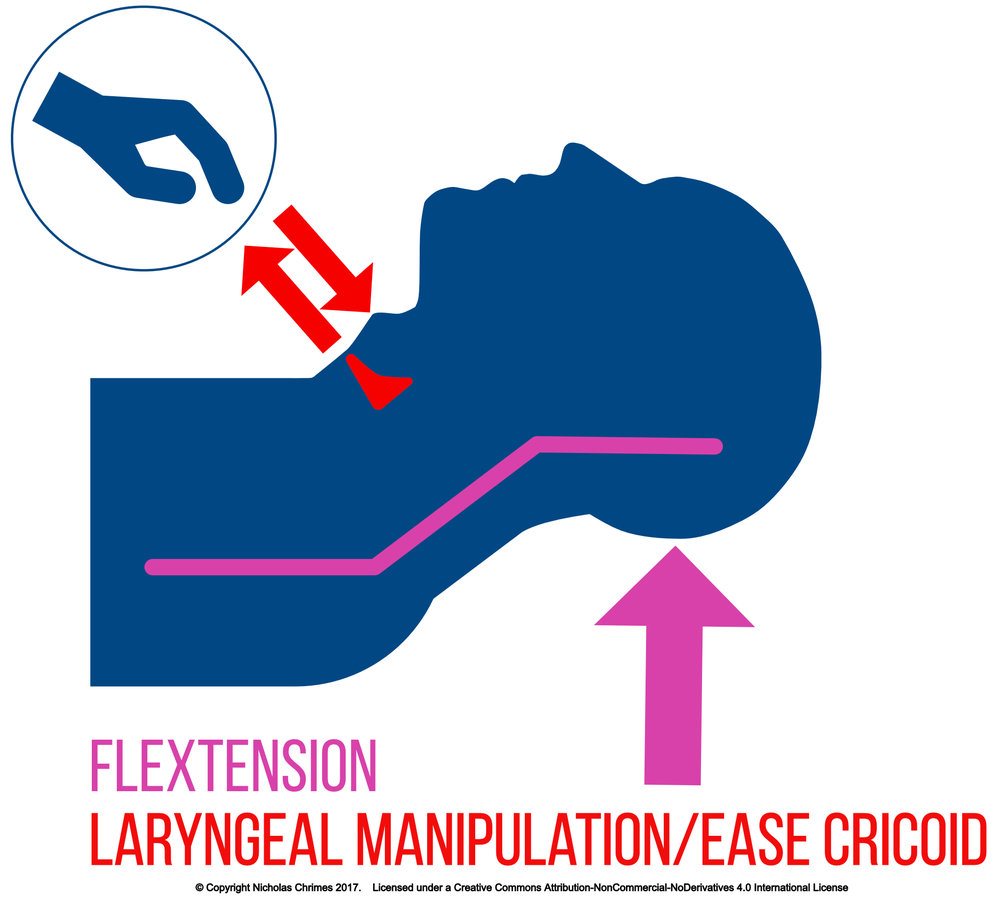 ETT Head, Neck & Larynx Manipulations