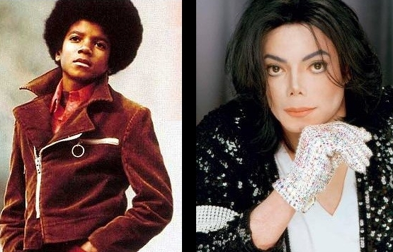 Michael Jackson. It doesn't matter if you're black or white (as long as you're whiter)