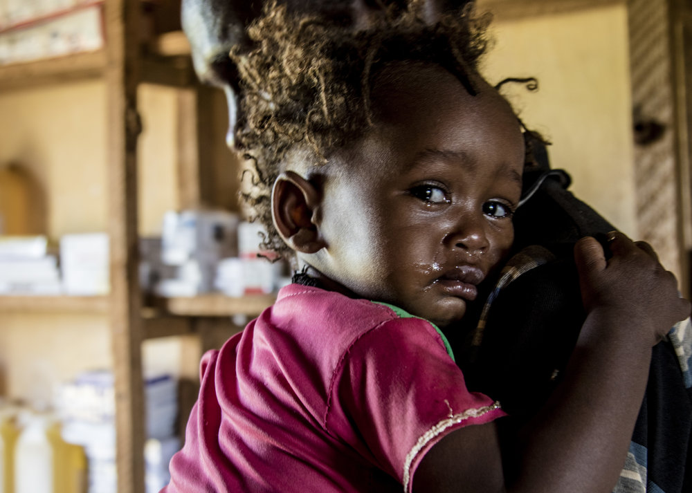 April 1, 2018, Dambala Fachana, Kenya- A young refugee girl, 1 and a half years old, cries as she gets the bandage of her boil taken off.