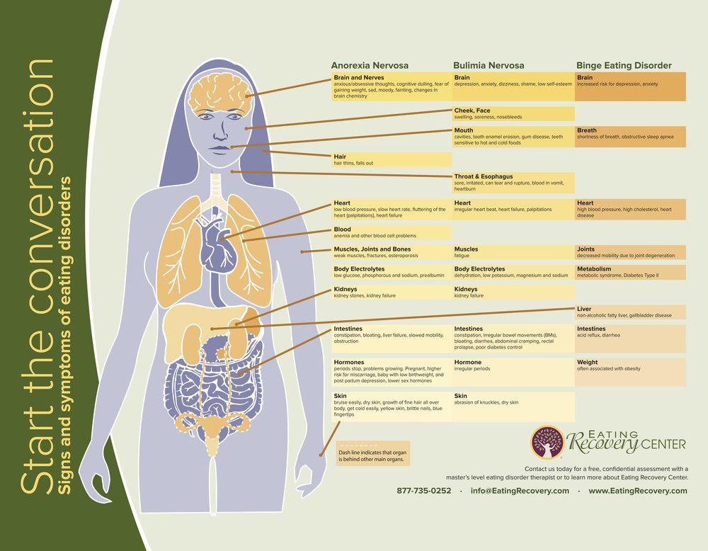 ERC-Physician-Guide-Body-Diagram-flyer_03-16.jpg