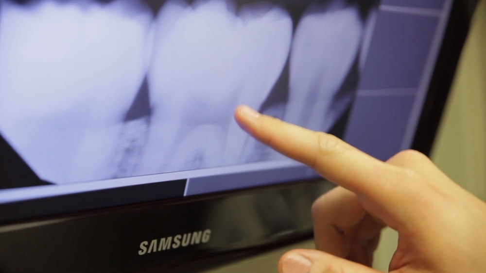 Kwon Family Dentistry, Digital X-Ray