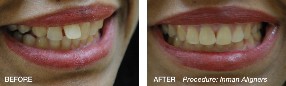 Inman-Aligners-Before-After-2-Weiss.jpg