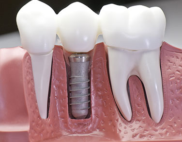 Dental Implant Interior View