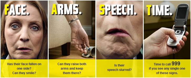 Here's a reminder of how we can identify a stroke in others, and act FAST to help